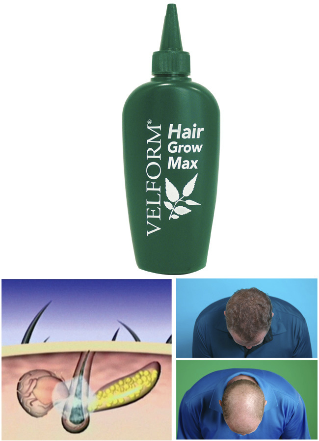 """VELFORM Hair Grow Max"" Haarwasser"